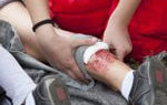 First Aid Leg Dressing